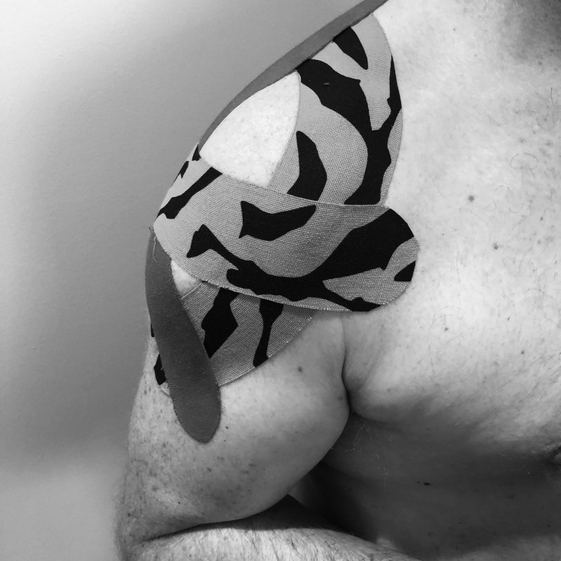 Black and white image of a person's shoulder and partial view of their arm and torso. The shoulder has been taped up with patterned physiotherapy tape.
