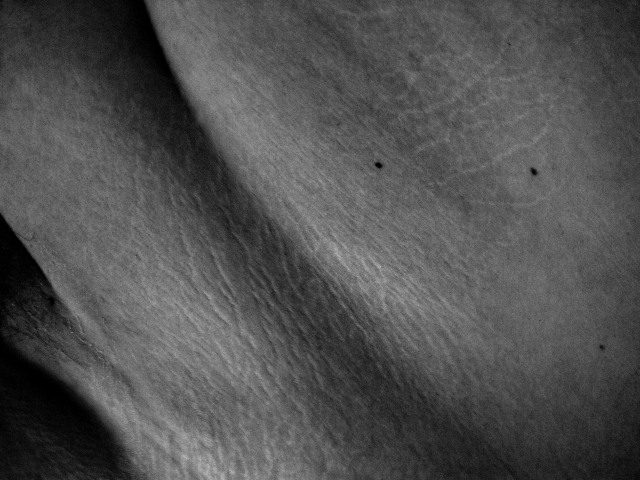 Black and white image of an unidentifiable body part, focusing on the different textures of skin.